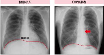 COPDかも…。どうしたらわかりま...